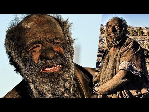 Man Who Has Not Taken Bath Since 60 Years