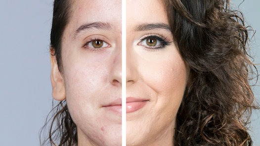 Women with Acne get incredible makeup transformations