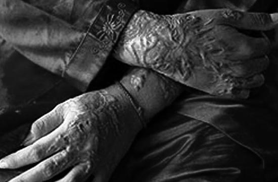 گجرات : یونیورسٹی جانیوالی تین طالبات تیزاب گردی کا شکار، ایک ملزم گرفتار