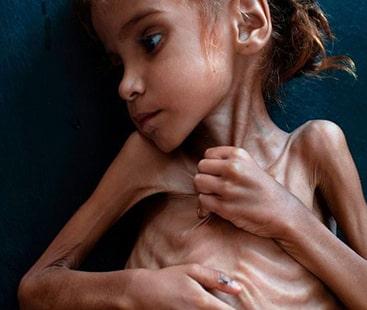 جنگ اور بھوک ہزاروں بچے نگل رہی ہے