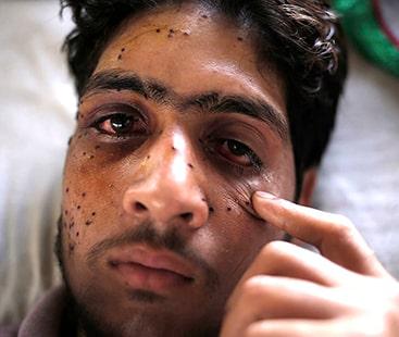 بھارتی فوج کی درندگی: پیلٹ گولیوں نے ہزاروں کشمیریوں کی بینائی چھین لی