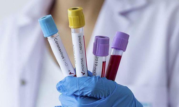 کورونا کے علاج کے لیے پلازمہ جمع کرنے کی اجازت دے دی گئی