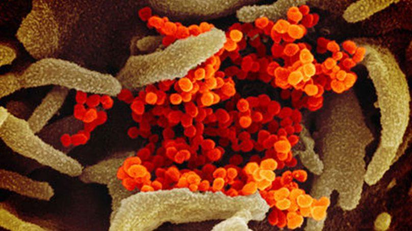 متعدد اراکین پارلیمنٹ بھی کورونا وائرس کا شکار