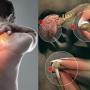 دنیا بھر میں آج ہڈیوں کے مرض آسٹیو پوروسس کا عالمی دن