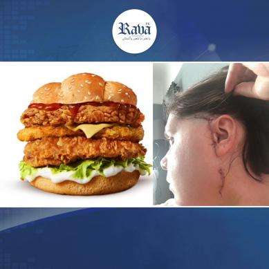 burger1 389x389