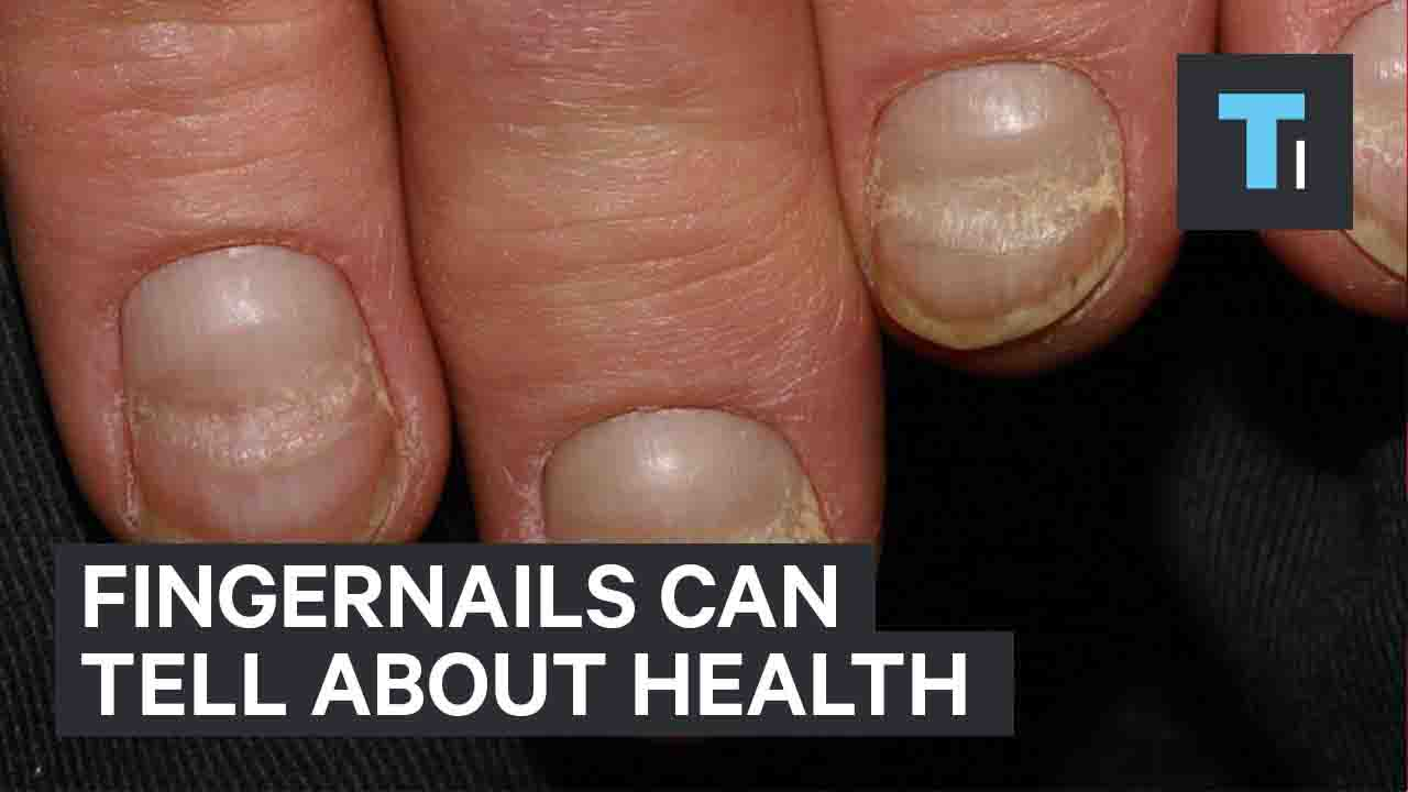 Fingernails Can Tell About Health