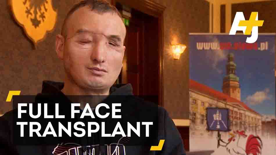 Man With Full Face Transplant Eating Again