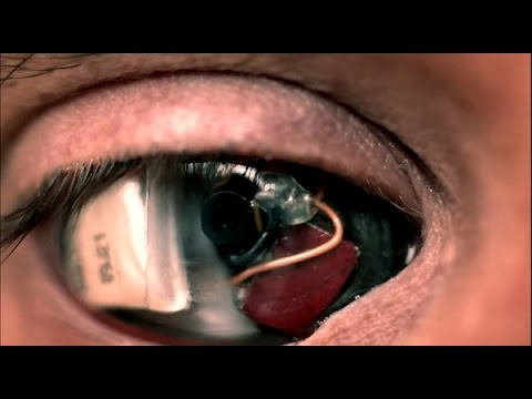Eyeborg-The-Man-Who-Replaced-His-Eyeball-with-a-Camera
