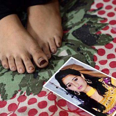 Acid Attack Survivor: Reshma Qureshi