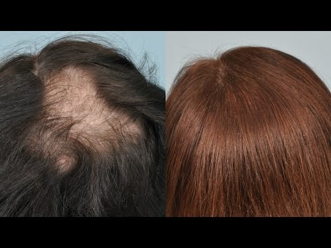 How To Stop Hair Fall / Thinning At Home Hair Growth | SuperPrincessjo