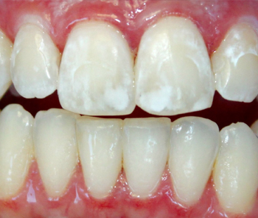 Why White Spots Appear On Teeth