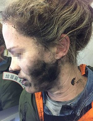 Woman Burnt After Headphones Explode On Flight To Australia