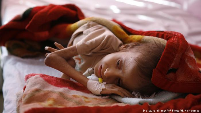 "Yemen faces ""biggest hunger in decades"" : UN"