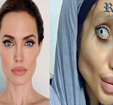 Teenager goes too far in her obsession to look like Angelina Jolie