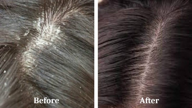 Home Remedies to Fight Dandruff this Winter
