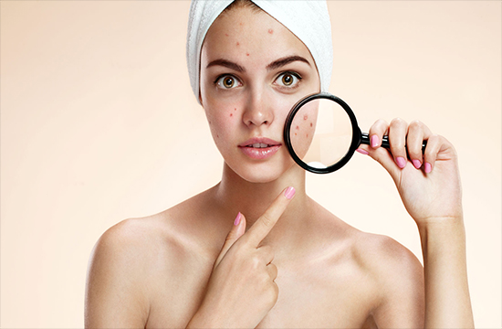 5 things you should not tell someone with acne