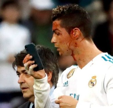 The striking reaction of Cristiano Ronaldo after receiving a blow to the face
