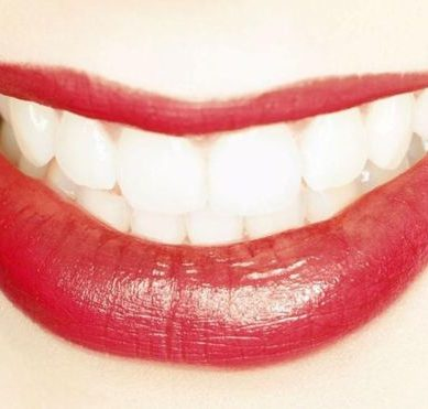 The dangers of illegal tooth whitening and the terrible side effects it has