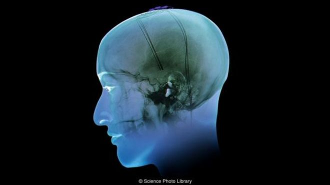 How electrodes in the brain can help treat obesity and depression