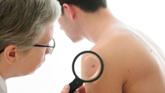 World day against melanoma: 5 changes in your moles that you should not miss