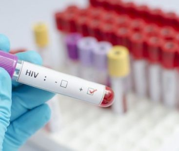 Stem cells to treat HIV: the latest breakthrough against the virus that causes AIDS