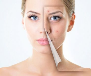 Is changing diet really effective in curing acne?