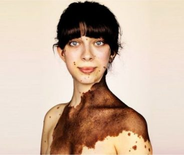 The images that show the melanocytic nevus, the strange condition by which enormous birthmarks appear