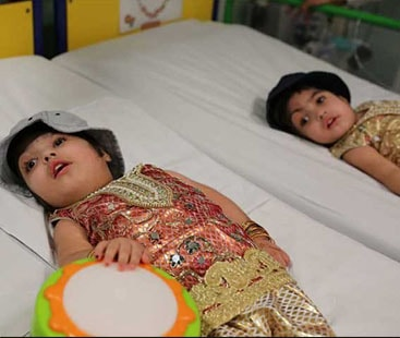 Pakistani conjoined twins separated in a rare surgery