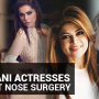 Secret Out: Pakistani Actresses Who Got Nose Surgery