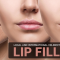 Local and International Celebrities Who Got the Lip Fillers