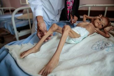 """A crippling famine is set to become Yemen's """"reality"""": UN"""